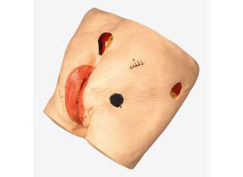 褥疮护理模型