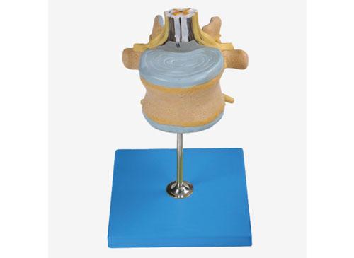 腰椎附脊髓与马尾神经放大模型