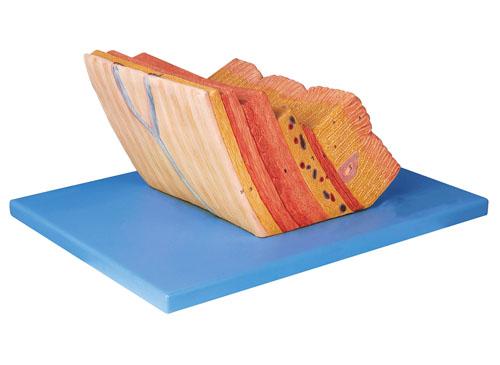 胃壁放大模型