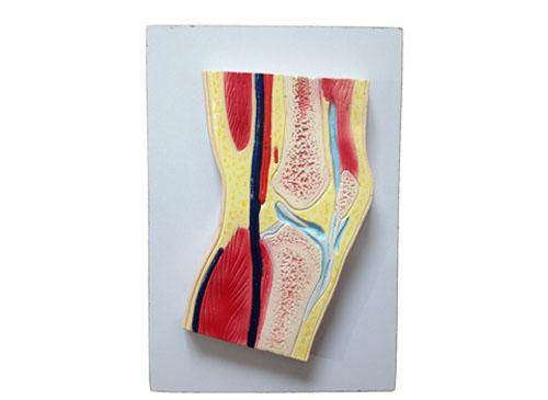 膝关节剖面模型