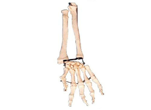 手掌骨带尺骨和桡骨模型