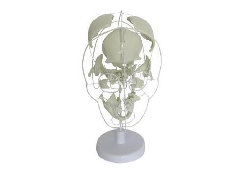 颅骨骨性分离模型